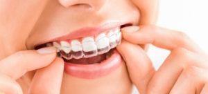 Выравнивание-зубов